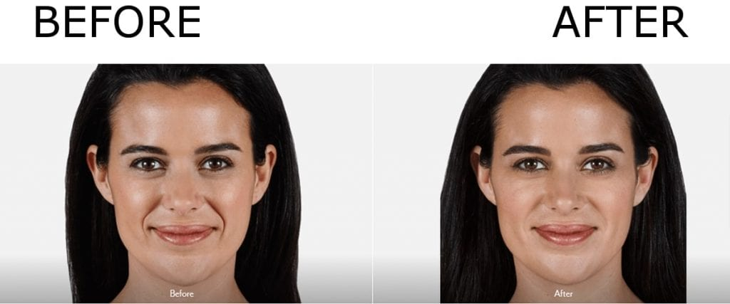 before and after Juvederm Injections