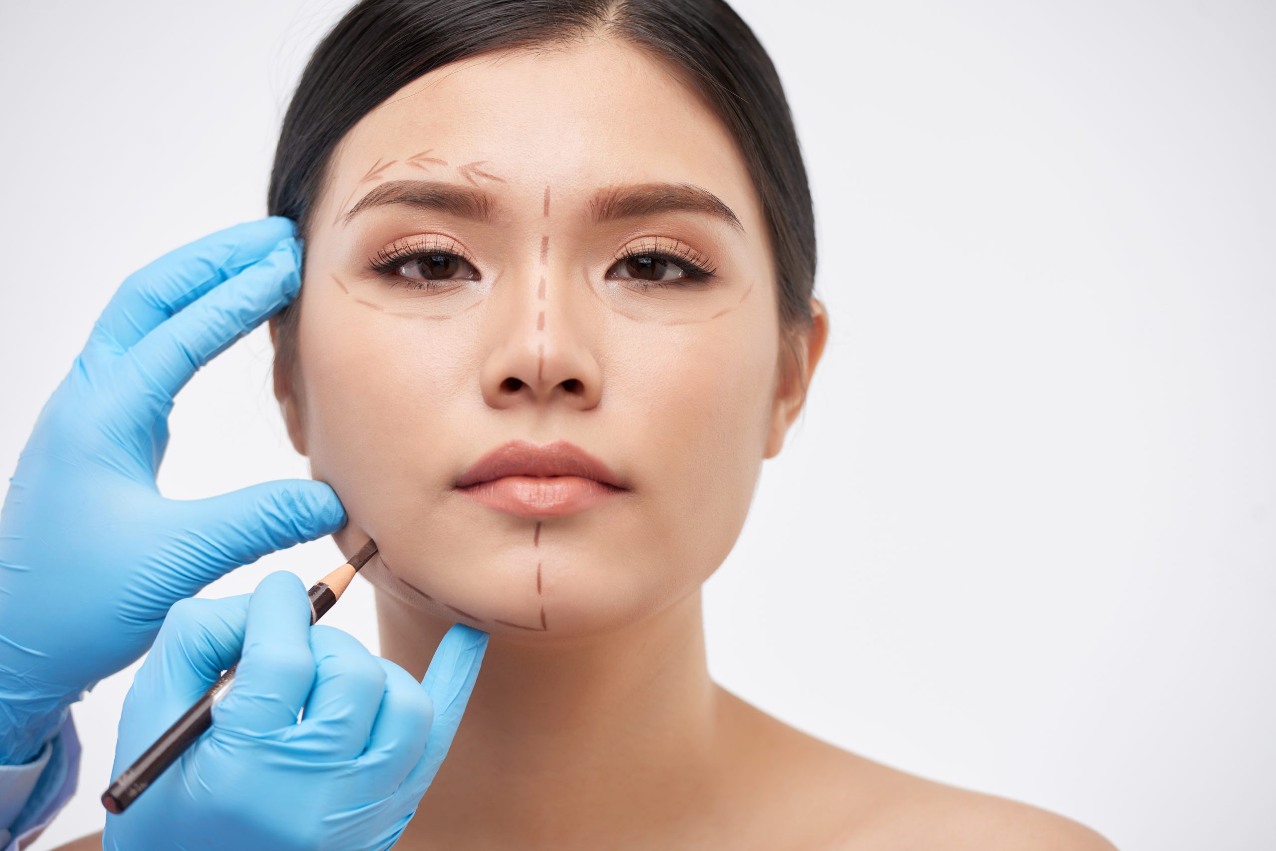 Drawing marks for Botox treatment