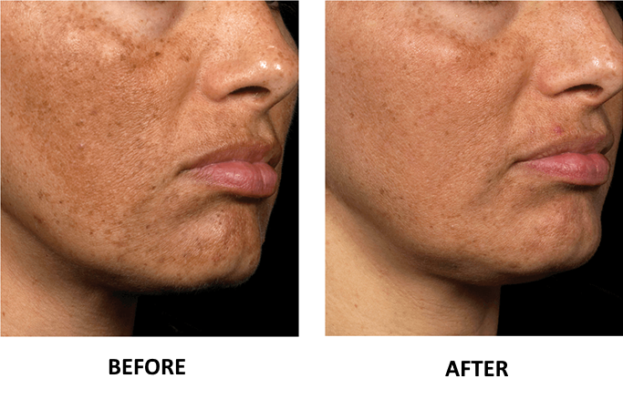 fraxel-laser-treatment-before-after