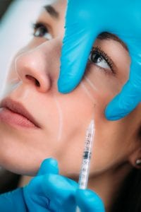 Anti Aging Treatment. Dermal Filler Injection