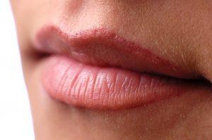 Perfect Natural Lips through dermal filler